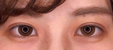 湘南美容クリニック川崎院の目・二重の整形の症例写真[アフター]