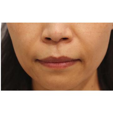 RDクリニックの顔のしわ・たるみの整形(リフトアップ手術)の症例写真[アフター]