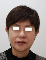 ザ ナチュラルビューティークリニック四ツ橋院の顔のしわ・たるみの整形(リフトアップ手術)の症例写真[アフター]