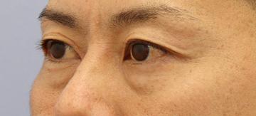 湘南美容クリニック 銀座院の目元の整形、くま治療の症例写真[ビフォー]