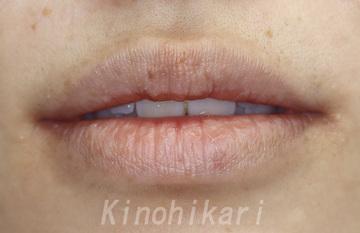 樹のひかり 形成外科・皮ふ科のシミ治療(シミ取り)・肝斑・毛穴治療の症例写真[アフター]