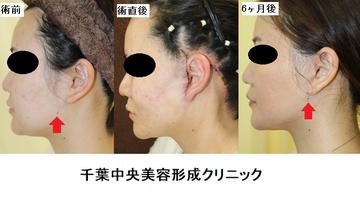 千葉中央美容形成クリニックの顔のしわ・たるみの整形(リフトアップ手術)の症例写真
