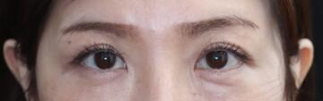 レア形成外科・美容皮膚科の症例写真[アフター]