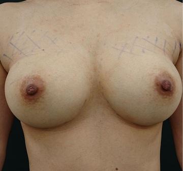 銀座3丁目・BANNAI美容クリニックの豊胸手術(胸の整形)の症例写真[アフター]
