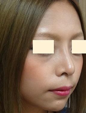 鼻の整形の症例写真[アフター]
