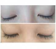 の薄毛治療・AGA・発毛の症例写真