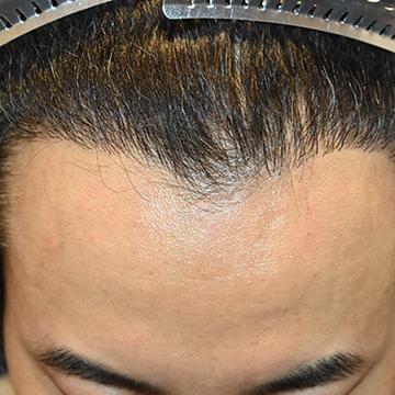 親和クリニックの植毛・自毛植毛の症例写真[アフター]