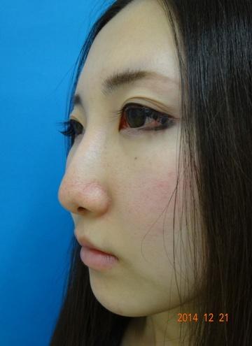医療法人社団 愛美会の鼻の整形の症例写真[アフター]