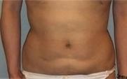 恵聖会クリニックの脂肪吸引の症例写真[アフター]
