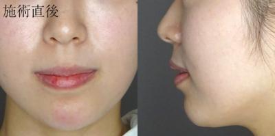 3DEライン(顎形成術)の症例写真[アフター]