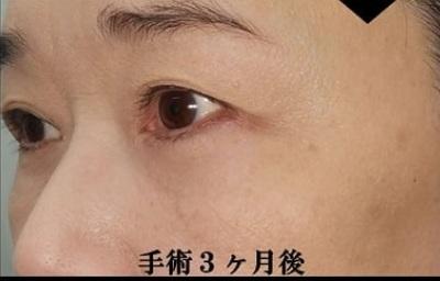 アイバックリムーブ+コンデンスリッチ/術後3ヶ月の症例写真[アフター]