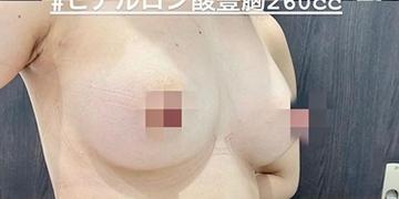 ルラ美容クリニックの豊胸手術(胸の整形)の症例写真[アフター]