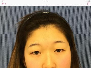 新宿美容外科クリニックの目・二重の整形の症例写真[ビフォー]