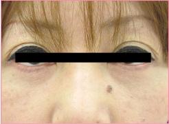 城本クリニックの目元の整形、くま治療の症例写真[アフター]