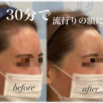 ロレシー美容クリニック 心斎橋駅前院の輪郭・顎の整形の症例写真