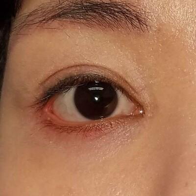 下眼瞼下制(切開によるタレ目形成)・目尻切開/術後1ヶ月の症例写真[アフター]