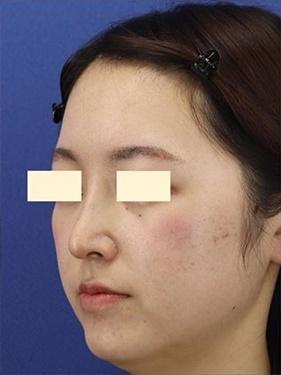 プロテーゼ・鼻中隔延長(肋軟骨) 術後1ヶ月の症例写真[アフター]