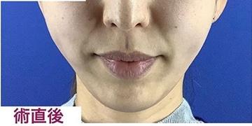 La Clinique Ginza(ラ クリニック銀座)の顔のしわ・たるみの整形(リフトアップ手術)の症例写真[アフター]