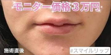 ルラ美容クリニックの口もと、唇の整形の症例写真[アフター]