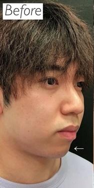 銀座ゼロクリニックの輪郭・顎の整形の症例写真[ビフォー]