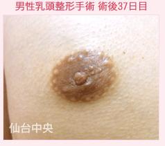 の乳首・乳輪の整形の症例写真[アフター]