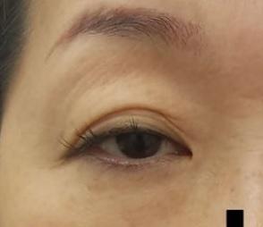 湘南美容クリニック赤羽院の目・二重の整形の症例写真[ビフォー]