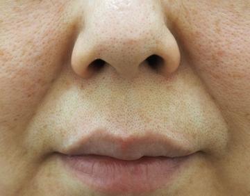 タウン形成外科クリニックの口元・唇の整形の症例写真[ビフォー]