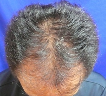 広島プルミエクリニックの薄毛治療の症例写真[ビフォー]