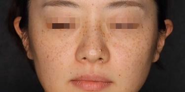 ピコレーザーによるシミ治療の症例写真[ビフォー]