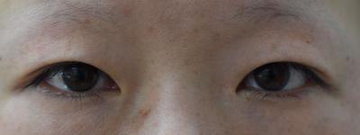 目元の複合施術 二重切開法(腱膜短縮)・上瞼脱脂・目頭切開の症例写真[ビフォー]