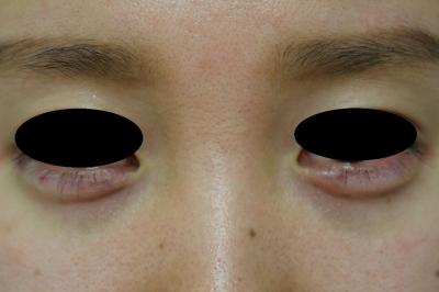 若い女性の涙袋へのヒアルロン酸注入の症例写真[アフター]