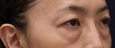 切らない下まぶたのふくらみ取り治療 両側の症例の症例写真[ビフォー]