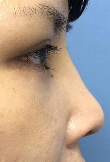 湘南美容クリニック赤羽院の鼻の整形の症例写真[アフター]