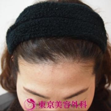 東京美容外科の薄毛治療・AGA・発毛の症例写真[ビフォー]