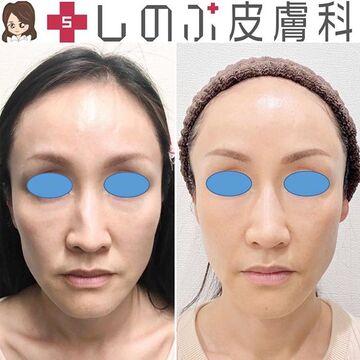 しのぶ皮膚科の顔のしわ・たるみの整形(リフトアップ手術)の症例写真