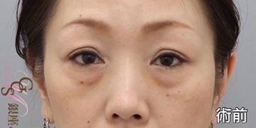 銀座みゆき通り美容外科大阪院の目元の整形、くま治療の症例写真[ビフォー]
