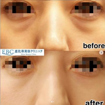 恵比寿美容クリニックの目元整形・クマ治療の症例写真