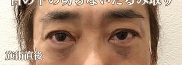西宮SHUHEI美容クリニックの目元の整形、くま治療の症例写真[アフター]