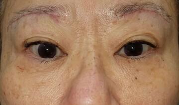 湘南美容クリニック 赤羽院の目元の整形、くま治療の症例写真[アフター]