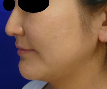 のシワ・たるみ(照射系リフトアップ治療)の症例写真[ビフォー]