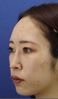 銀座長瀬クリニックの目・二重の整形の症例写真[アフター]