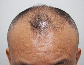 アスク井上クリニック (自毛植毛・薄毛治療 専門)の植毛・自毛植毛の症例写真[ビフォー]