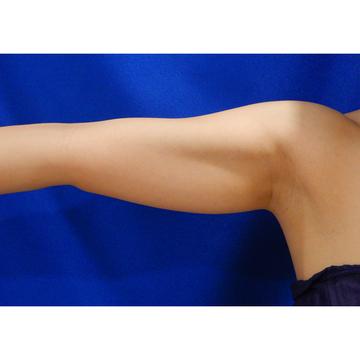 水の森美容外科の脂肪吸引の症例写真[ビフォー]