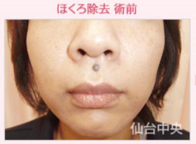 黒子除去、鼻の下の黒子の症例写真[ビフォー]