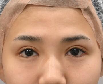 湘南美容クリニック 品川院の輪郭・顎の整形の症例写真[ビフォー]