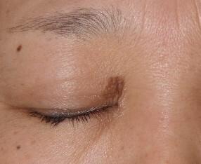 タウン形成外科クリニックのホクロ除去・あざ治療・イボ治療の症例写真[ビフォー]