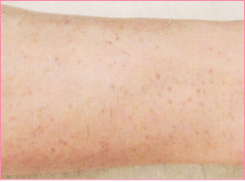 ■毛孔性苔癬(もうこうせいたいせん)の症例写真[アフター]
