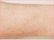 城本クリニックのその他の美容皮膚科治療の症例写真[アフター]