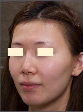 プロテーゼ・鼻中隔延長・鼻根部レディエッセ除去 術後3ヶ月の症例写真[ビフォー]