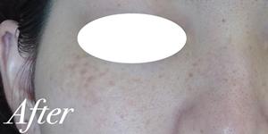 表参道スキンクリニックのシミ治療(シミ取り)・肝斑・毛穴治療の症例写真[アフター]